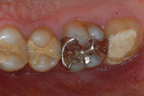 歯科医師の腕 治療後歯にフロスで挟まる取れない 東京職人歯医者_e0004468_14261267.jpg