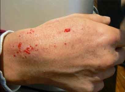 福島汚染除去のボランティアの皮膚から出血 / Twitter 画像_b0003330_19324895.jpg