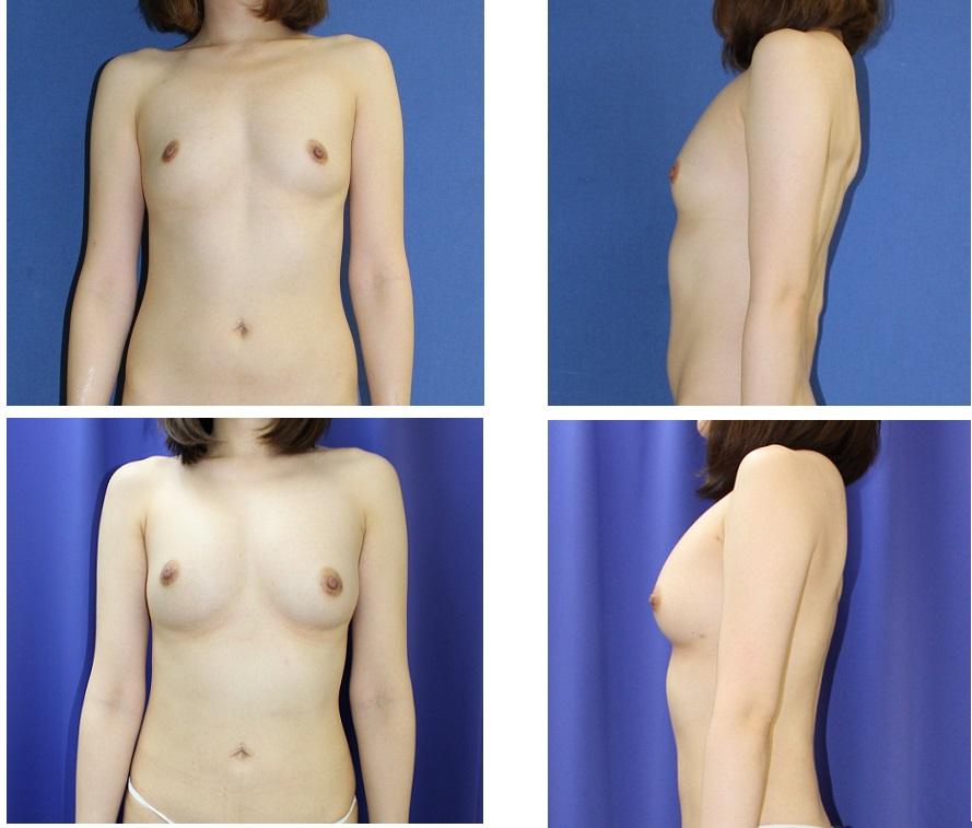 脂肪移植豊胸術 _d0092965_2572860.jpg