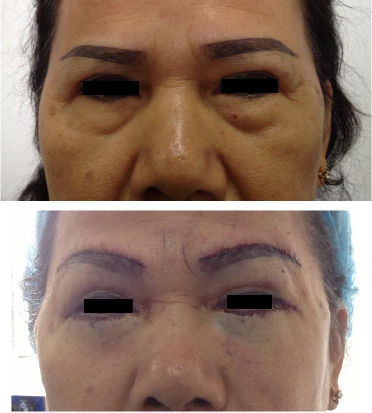 眉上切開による上眼瞼たるみ取り および 下瞼眼窩脂肪移動術(ハムラ法)_d0092965_54227.jpg