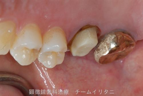抜歯適応の歯を治療した結果  東京職人歯医者_e0004468_1512091.jpg