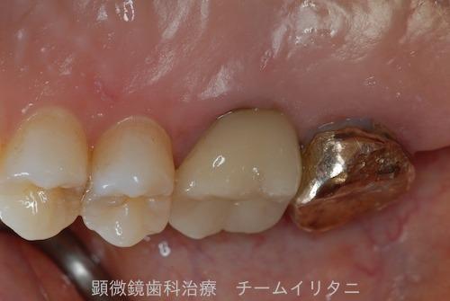 抜歯適応の歯を治療した結果  東京職人歯医者_e0004468_15121427.jpg