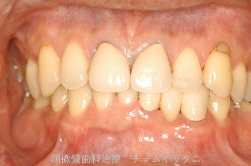 10年後治療経過 東京顕微鏡歯科総合治療_e0004468_14532450.jpg