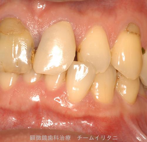 10年後治療経過 東京顕微鏡歯科総合治療_e0004468_14532711.png