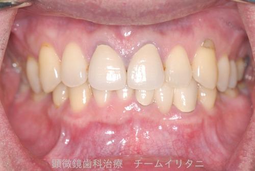 10年後治療経過 東京顕微鏡歯科総合治療_e0004468_14533143.jpg