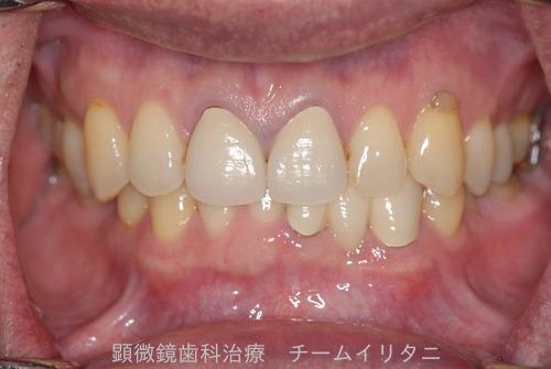 10年後治療経過 東京顕微鏡歯科総合治療_e0004468_14533544.jpg