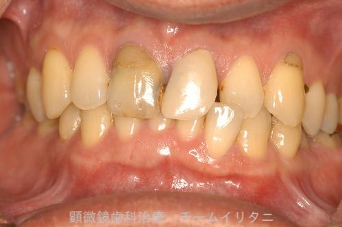 10年後治療経過 東京顕微鏡歯科総合治療_e0004468_1453948.jpg