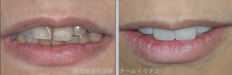 審美的な治療は歯科医師なら当たり前 東京職人歯医者_e0004468_5402731.jpg