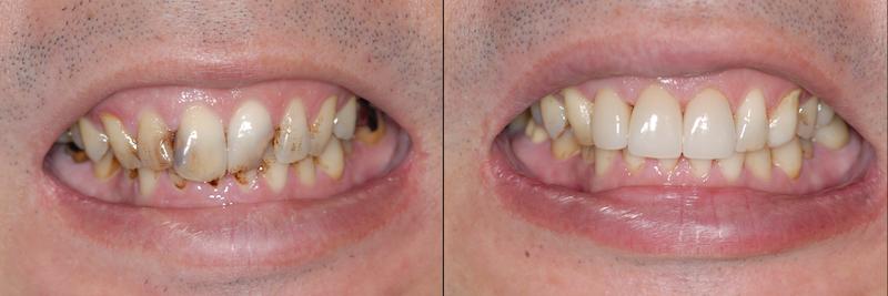 審美的な治療は歯科医師なら当たり前 東京職人歯医者_e0004468_8224813.png