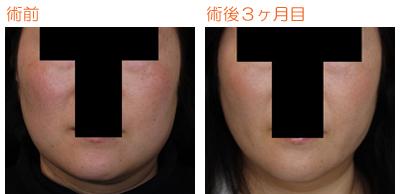 頬の脂肪吸引 術後3ヶ月目_c0193771_747646.jpg