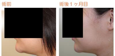 顎の脂肪吸引 術後1ヶ月目_c0193771_746350.jpg