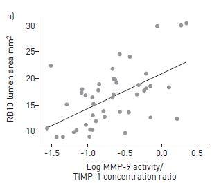 気管支喘息の喫煙者における喀痰中MMP-9/TIMP-1比の減少は気道壁の狭小化と関連_e0156318_2143430.jpg