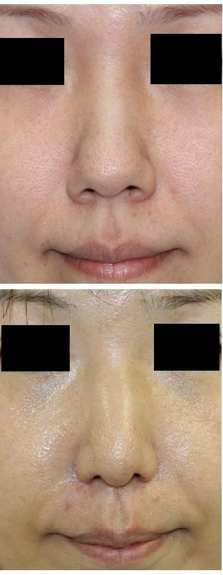 鼻尖縮小(クローズ法)、小鼻縮小術 術後約11か月_d0092965_0552344.jpg