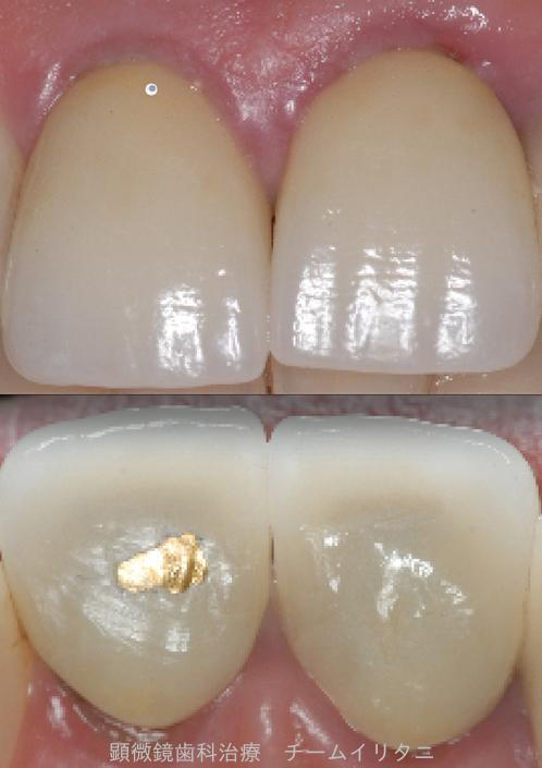 かかりつけにて抜歯宣告された歯の治療(根管治療)2年経過症例 東京顕微鏡治療総合診療 _e0004468_615716.png