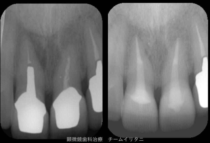 かかりつけにて抜歯宣告された歯の治療(根管治療)2年経過症例 東京顕微鏡治療総合診療 _e0004468_6333424.png