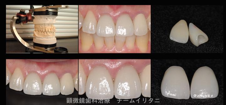 かかりつけにて抜歯宣告された歯の治療(根管治療)2年経過症例 東京顕微鏡治療総合診療 _e0004468_6395534.png
