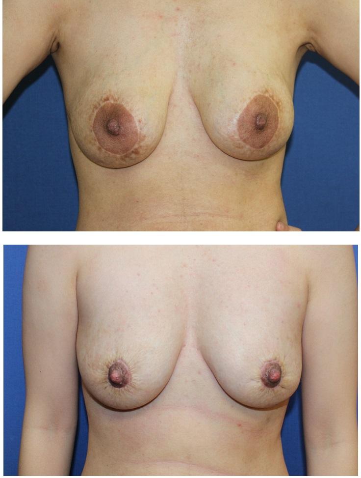 他院乳輪縮小術 術後修正術、 他院乳房インプラント抜去後脂肪移植_d0092965_172248.jpg