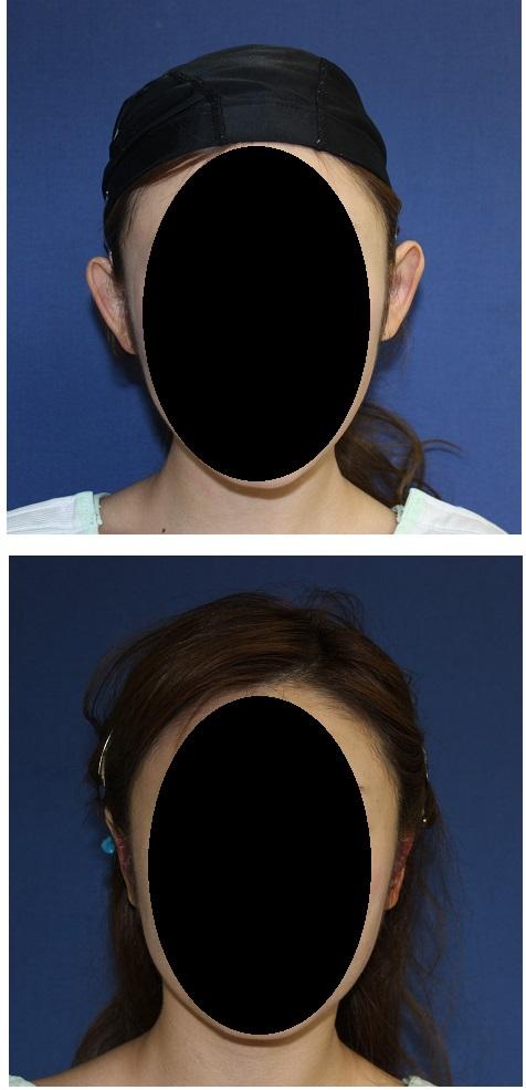 立耳修正術  手術当日_d0092965_648076.jpg