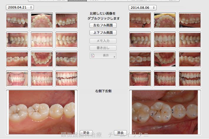 神経を取ると言われた深い虫歯 長期予後5年経過症例_e0004468_120544.png