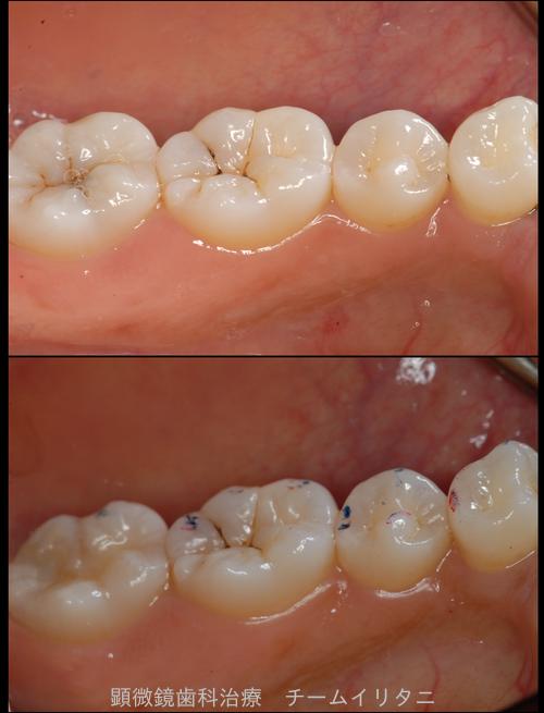神経を取ると言われた深い虫歯 長期予後5年経過症例_e0004468_121738.png
