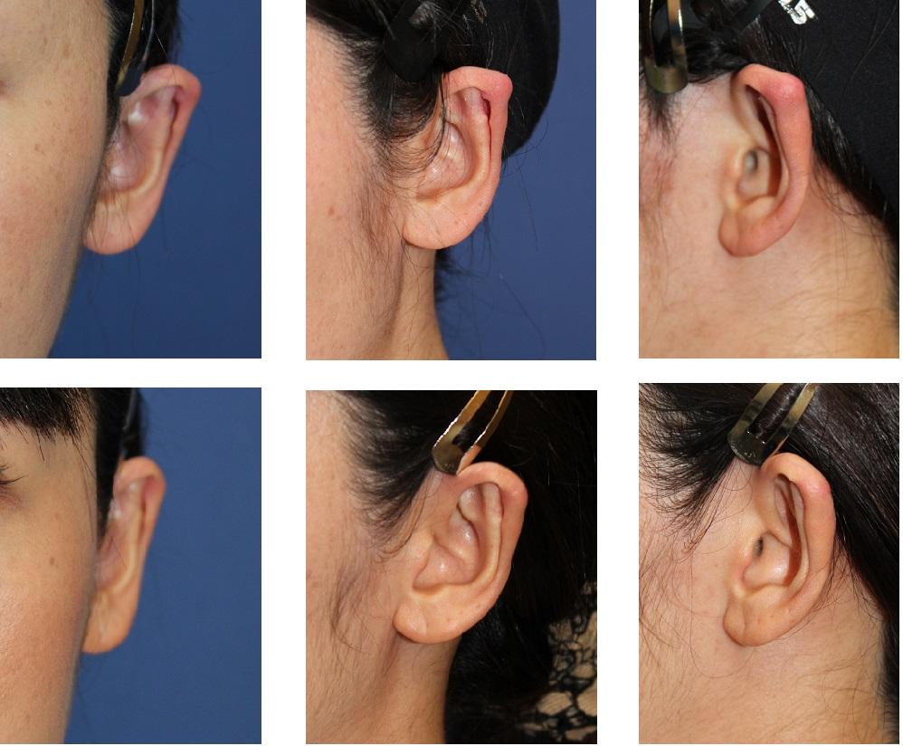 他院術後 変形耳に対する 立耳修正術_d0092965_1343587.jpg
