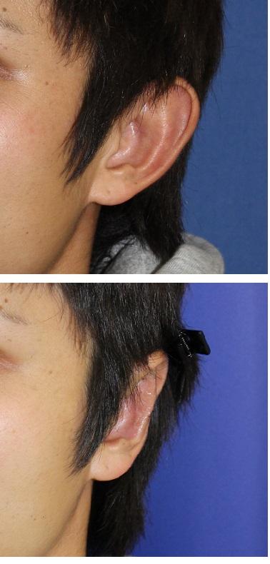 立耳修正術(クローズ法)  :  患者さんからのメール_d0092965_1515870.jpg
