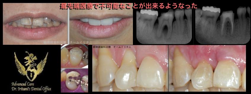 超低レベルな保険歯科医療を続けた結果_e0004468_7522662.png