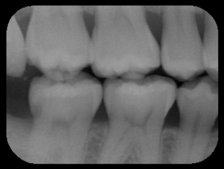 神経を取ると言われた深い虫歯 長期予後5年経過症例_e0004468_19361110.png