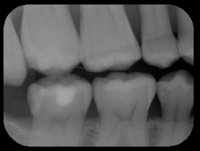 神経を取ると言われた深い虫歯 長期予後5年経過症例_e0004468_19361496.png