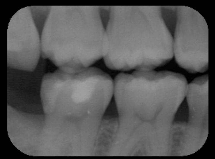 神経を取ると言われた深い虫歯 長期予後5年経過症例_e0004468_19361655.png