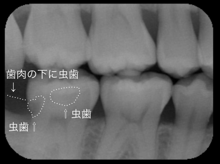 神経を取ると言われた深い虫歯 長期予後5年経過症例_e0004468_4213042.png