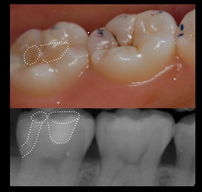 神経を取ると言われた深い虫歯 長期予後5年経過症例_e0004468_452997.png
