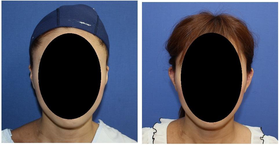 寝耳修正手術 + 耳介形態修正術 :  折れ耳修正術_d0092965_425987.jpg