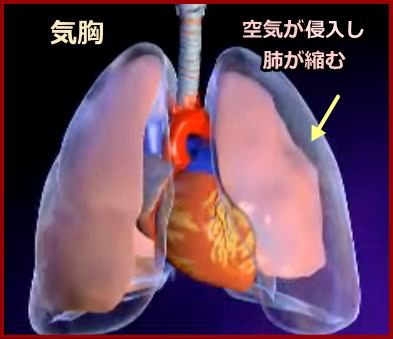肺 気胸 症状