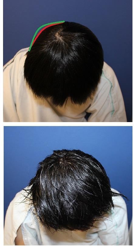 頭蓋形態修正術_d0092965_274496.jpg