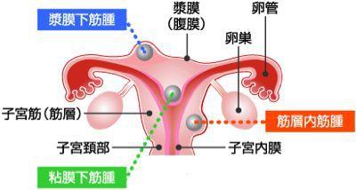 子宮筋腫とは_b0328361_1773832.jpg