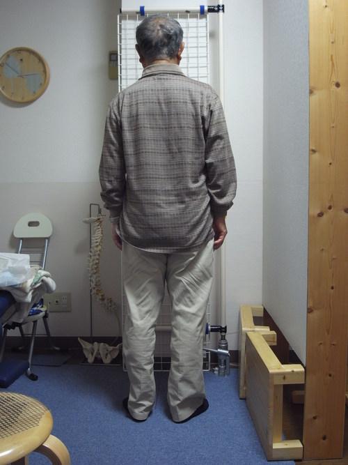 佐久市 男性 79歳 交通事故後遺症 むちうち(頸椎捻挫) 首肩の痛み 腕の痛み 腰痛 交通事故治療_b0168743_1042930.jpg