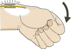 手の外科~その2~ ドケルバン病(狭窄性腱鞘炎)治療~_a0296269_10131792.jpg