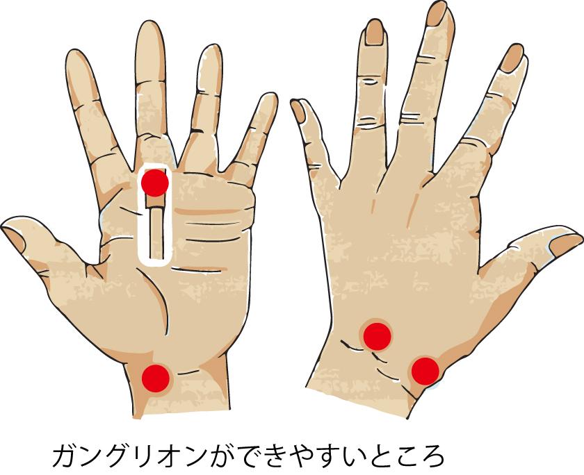 手の外科~その3~ ガングリオン~_a0296269_11093225.jpg