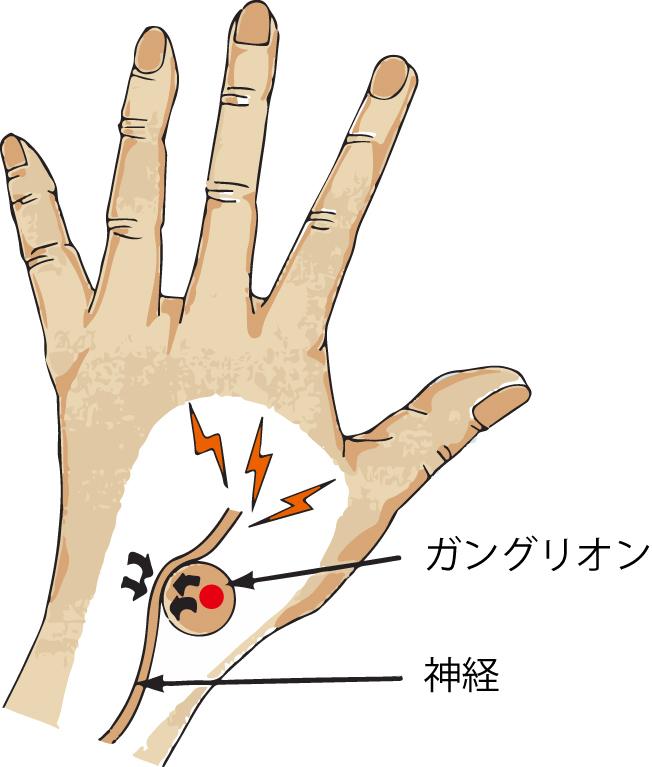 手の外科~その3~ ガングリオン~_a0296269_11093236.jpg