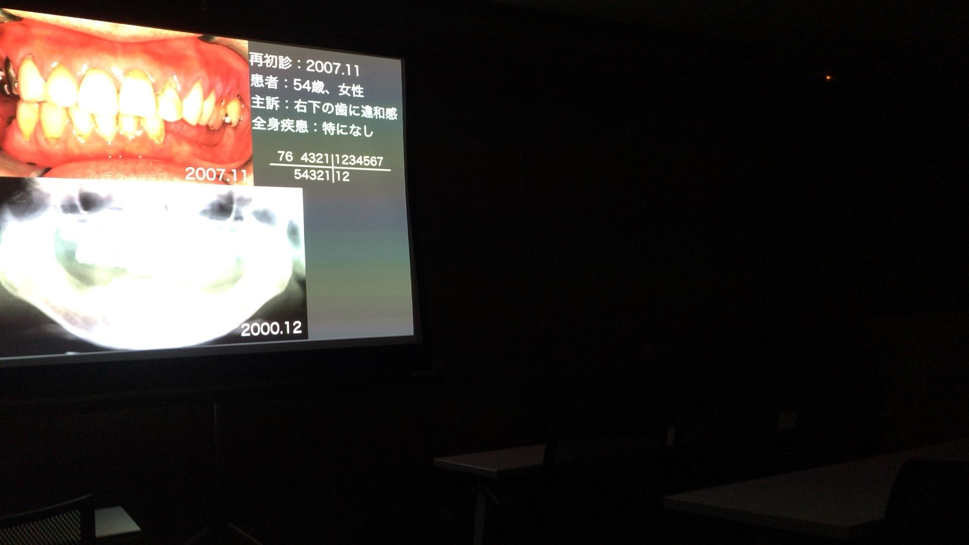 2014/11/05 救歯会例会_b0112648_13065829.jpg