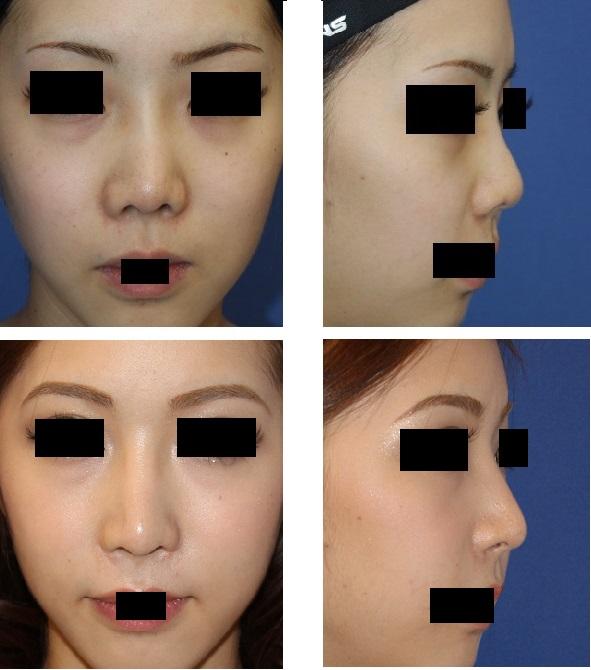 三度目の鼻中隔延長術(他院鼻中隔延長術修正術)、小鼻縮小術、小鼻肉厚減幅術、鼻プロテーゼ入れ替え 3_d0092965_671740.jpg