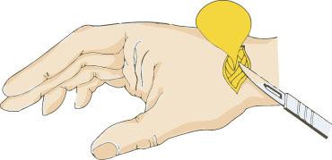 手の外科~その3~ ガングリオン 診断と治療~_a0296269_09173472.jpg