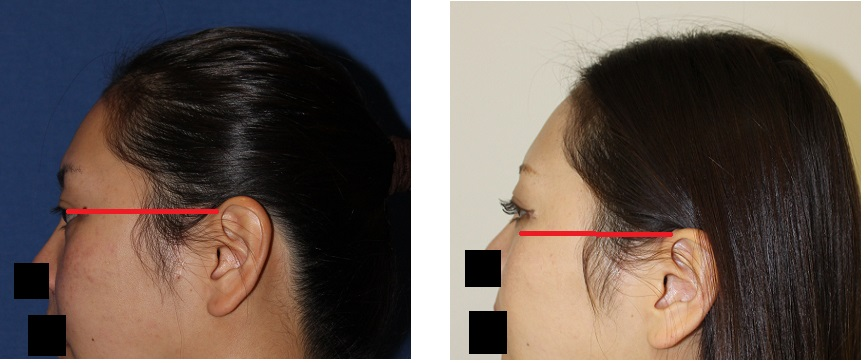 左耳 位置移動術 (耳輪脚 低位 移動術)_d0092965_19154542.jpg
