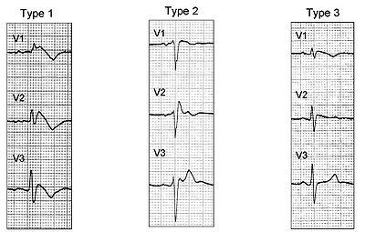 健康アスリートの心電図とタイプ2ブルガダ型心電図を鑑別する新しいクライテリア:Europace誌_a0119856_23201517.jpg