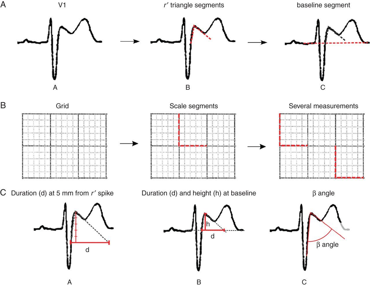 健康アスリートの心電図とタイプ2ブルガダ型心電図を鑑別する新しいクライテリア:Europace誌_a0119856_23203220.jpg