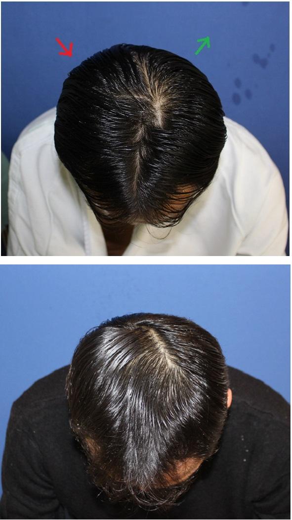 頭蓋形態修正術 (頭蓋削り、アパタイト、頭蓋用レジン様化合物併用)_d0092965_24667.jpg