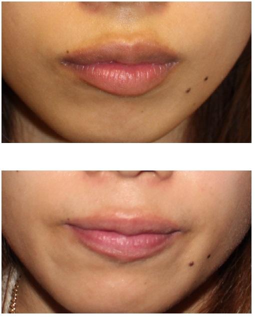 口唇脱色治療 開始後1か月_d0092965_357290.jpg