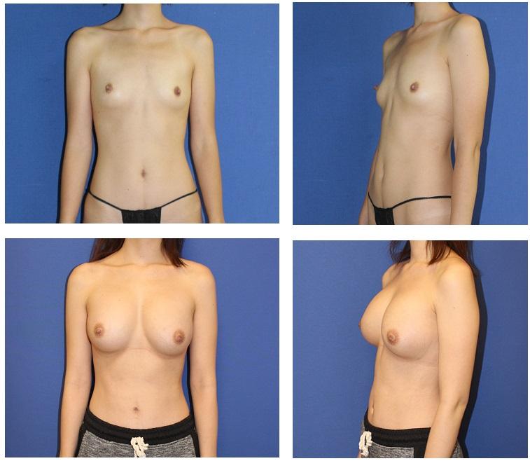 脂肪移植豊胸術 最終施術より術後10か月 再診時_d0092965_582824.jpg