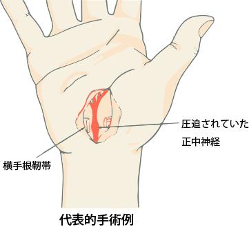手の外科~その6~手根管症候群 診断と治療~_a0296269_09435819.jpg